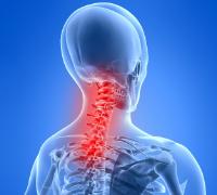 Nackskada Röntgenbild